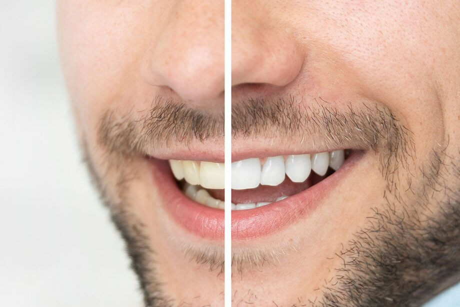 before and after of man smiling after teeth whitening