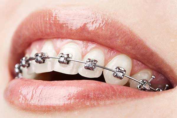 Close Up Of Smile With Metal Braces