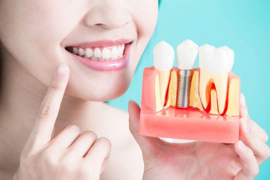 woman smiling, holding up dental implant model