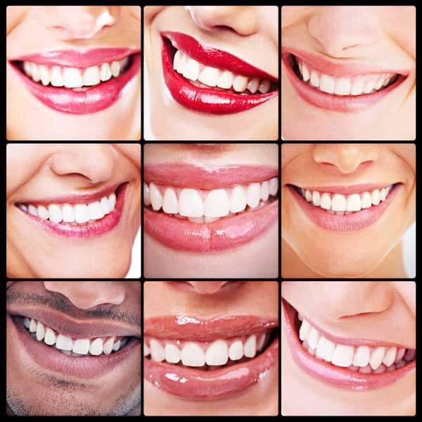 Collage of Beautiful Smiles